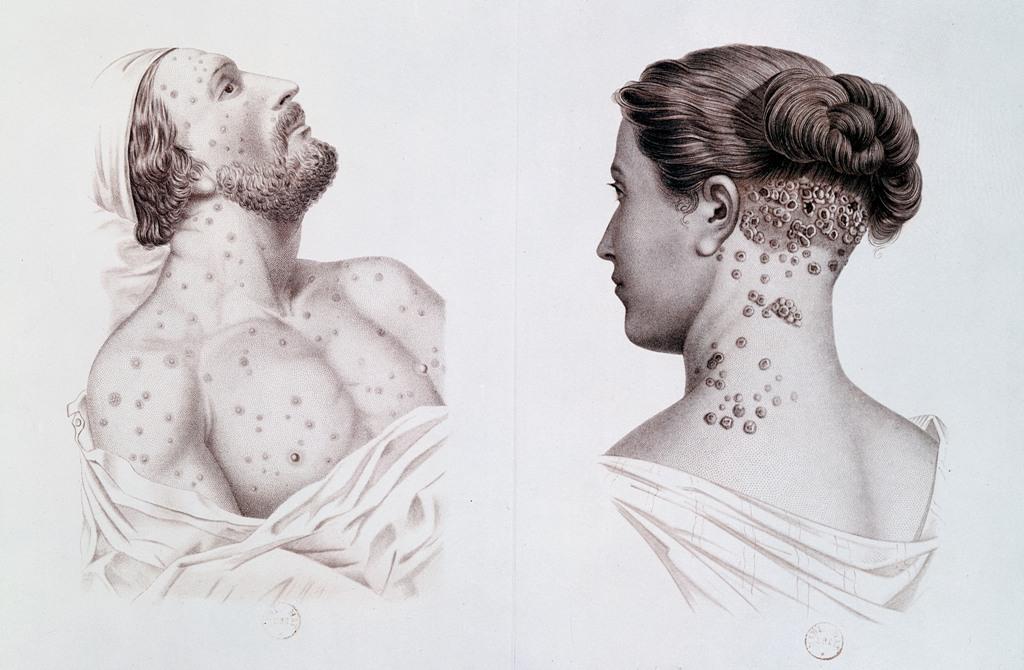 Syfilis Syphilis